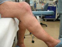 Лигаментоз коленных суставов