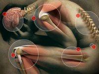 Демиелинизирующая полинейропатия