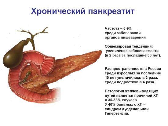 Информация о хроническом панкреатите