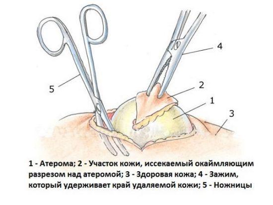 Вырезание атеромы
