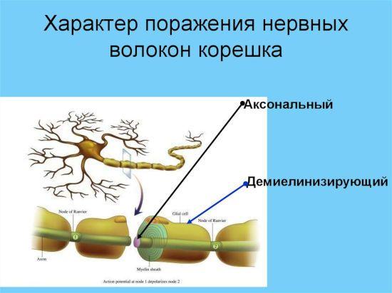 Поражение нервных волокон