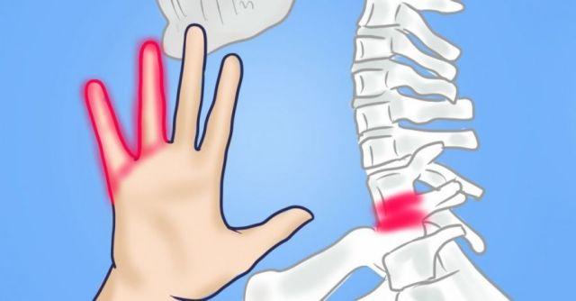 Остеохондроз и онемение пальцев