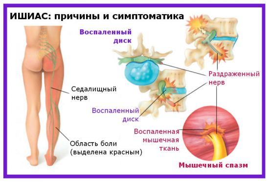 Причины боли при ишиасе