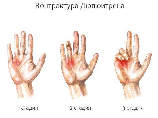 Пальцы не сгибаются