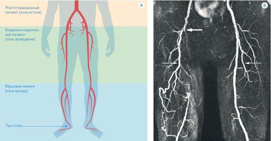 Рентген-снимок вен