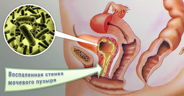 Бактериальный цистит