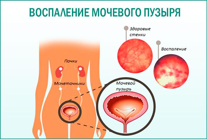 Причины воспаления мочевого пузыря у пожилых женщин