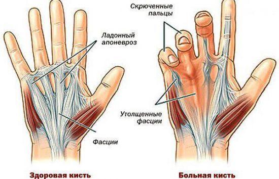 Пальцы на руке не сгибаются