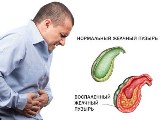 Приступ желчной колики
