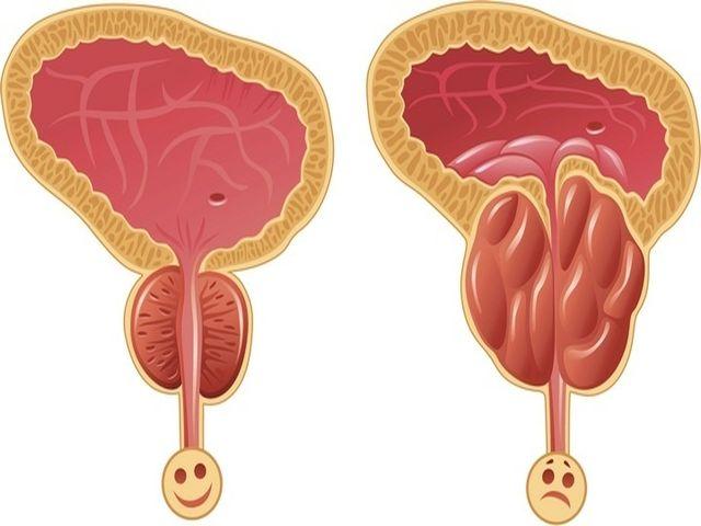 Увеличение предстательной железы