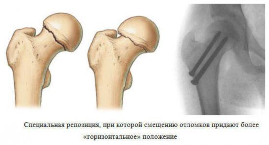 Операция остеосинтеза