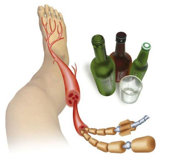 Нервные волокна ноги и алкоголь