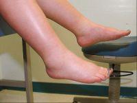 Отеки ступней ног при беременности