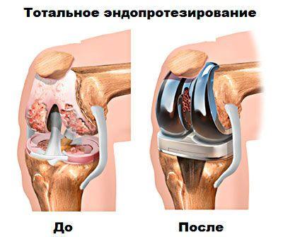 Тотальное эндопротезирование
