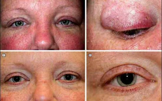 Поражение глаз при саркоидозе