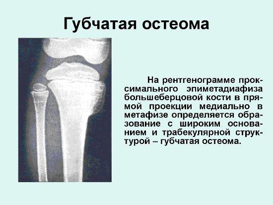 Губчатая остеома
